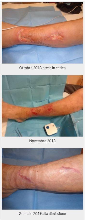 Berto ferita difficile alla gamba